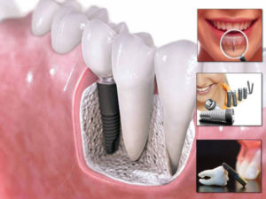 root canal treatment in pune